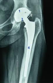 Intervento chirurgico dell'articolazione coxo-femorale